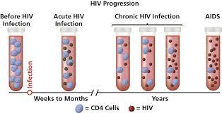 AIDS - CDC