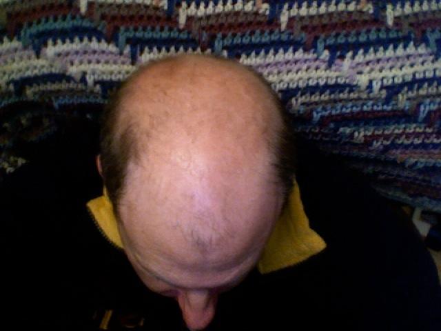 Bald_head