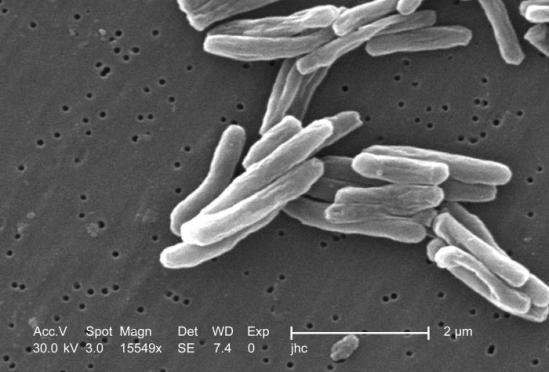 Mycobacterium tuberculosis - Wikimedia Commons