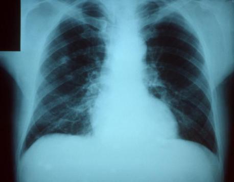 Pneumonia - Wikimedia Commons