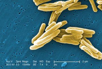 TB bacteria photo - Photo Credi -  Janice Carr, CDC