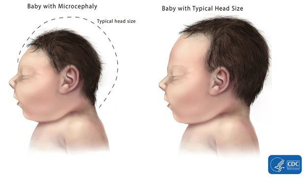 microcephaly comparison - CDC, National Center on Birth Defects and Developmental Disabilities