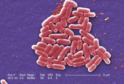 E. coli - Photo Janice Haney Carr, CDC
