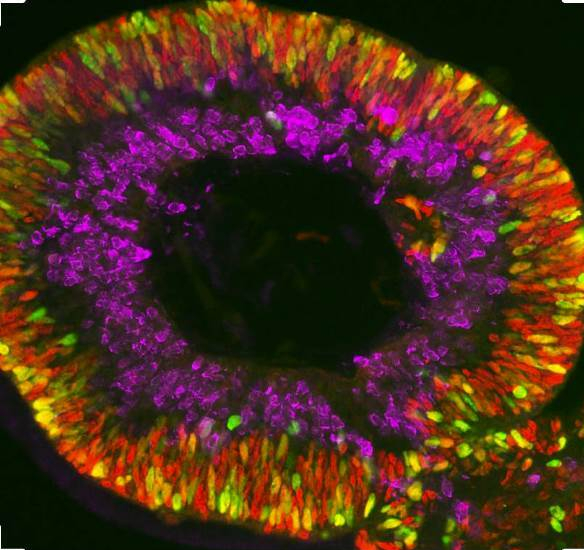 Organoids - retina. - photo - David Gamm, University of Wisconsin-Madison-Optimized